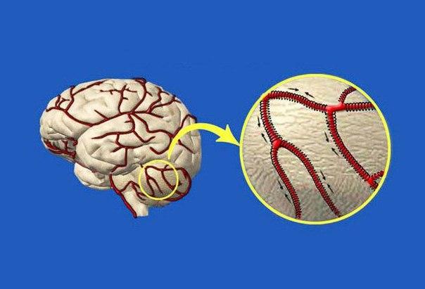 Как очистить сосуды головного мозга. Мощные рецепты народной медицины