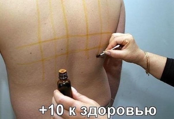 Целебные свойства йодовой сетки